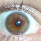 Tonis Auge